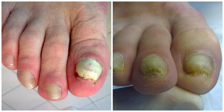 grzybica paznokci 2