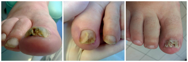 grzybica paznokci 3