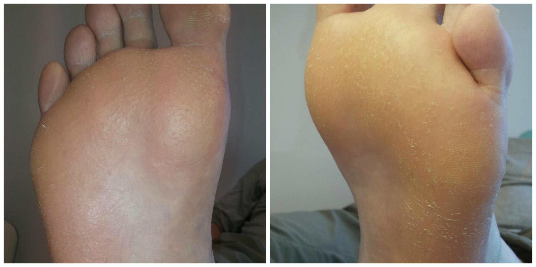 Pacjent bardzo aktywny fizycznie ze wzmożoną potliwością stóp.