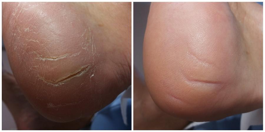 Bolesne pęknięcie pięty. Obraz przed oraz po opracowaniu.