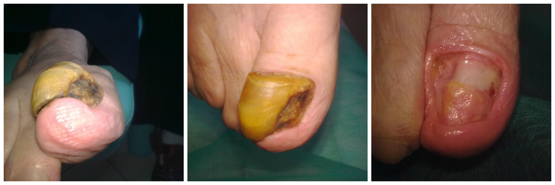 przerost paznokcia