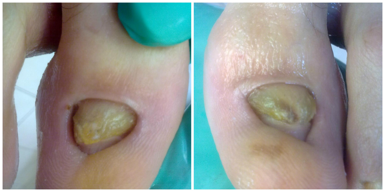 zdeformowany paznokiec